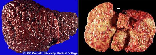 На фото цирроз печени при гепатите С