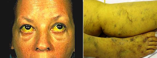 желтуха - симптом гепатита