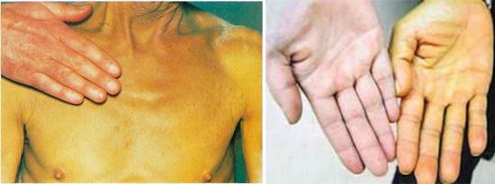 признаки желтухи и гепатита