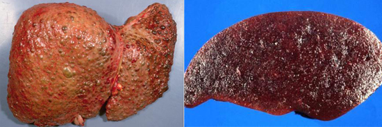 признаки гепатита С