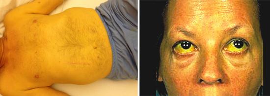 желтуха цирроз