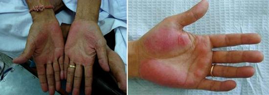 печеночные ладони гепатит В признаки