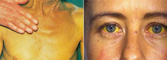 желтуха гепатит в