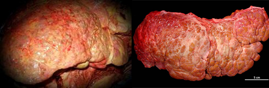 осложнение гепатита В