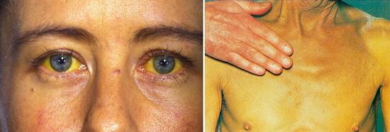 желтуха гепатит