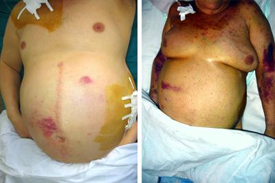 асцит цирроз