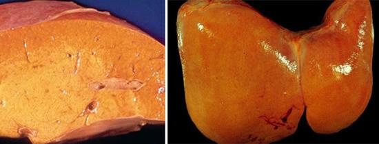 жировая дистрофия гепатит