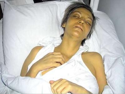 печеночная энцефалопатия фото