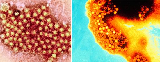 фото вирус гепатита А