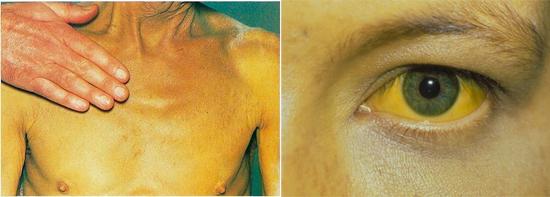 признаки гепатита А фото