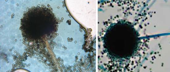 Строение аспергилла A. niger типично для грибков