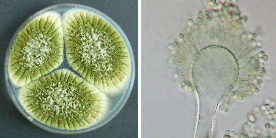 Колонии аспергилла могут иметь желто-зеленую окраску