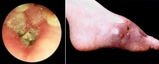 Аспергил может поражать слуховые проходы и кожные покровы