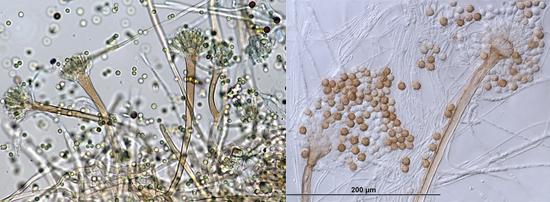 Микроскопические грибки можно разглядеть под микроскопом