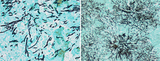 Гифы грибков могут быть найдены в мокроте у больных