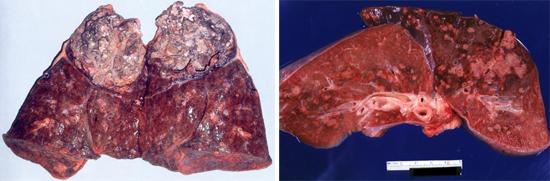 Хроническая пневмония обусловленная аспергиллезом