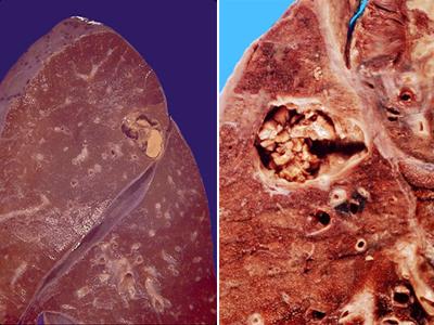 Пневмония, вызванная Aspergillus