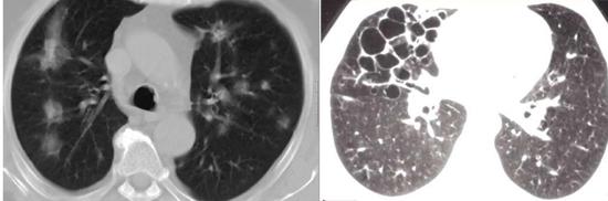 Инфильтраы в легких связанные с Aspergillus