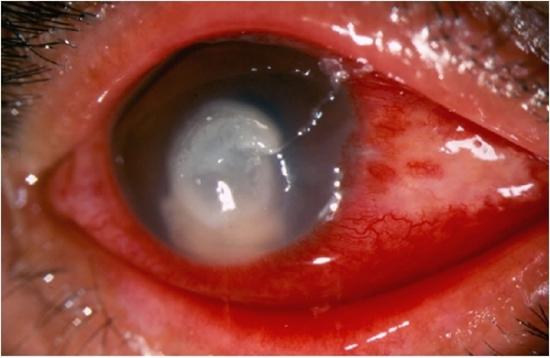 Кератомикоз нередко вызывается аспергиллами