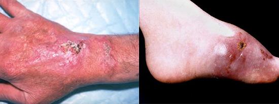 Аспергиллез ладоней и стоп - довольно частая патология.