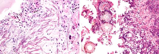 Аспергилл поражает многие ткани и органы человека