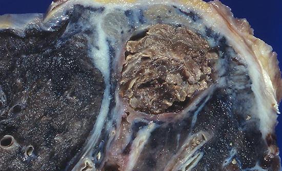 Поражение легких грибковой инфекцией