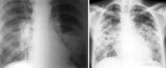 Поражение аспериллом легких выявляется с помощью флюрографии
