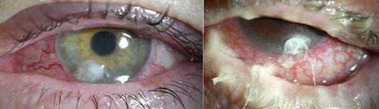 Pseudomonas aeruginosa в глазах