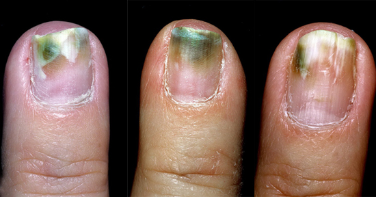 синегнойная инфекция ногтей фото