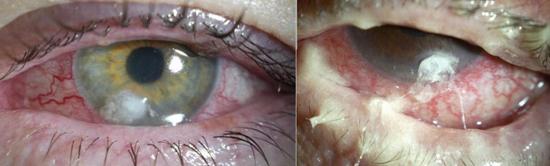 язва роговицы часто является последствием заражения синегнойной палочкой.