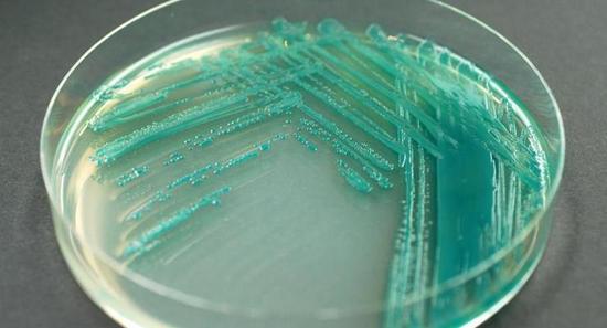 Pseudomonas aeruginosa окрашивает питальную среду в характерный сине-зеленый цвет.