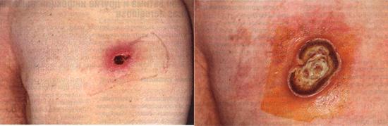 синегнойная инфекция приводит к возникновению гангренозной эктимы.