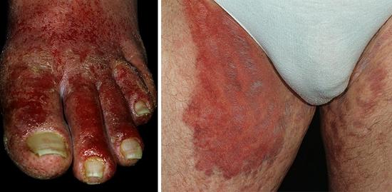 На фото показаны последствия заражения Pseudomonas aeruginosa