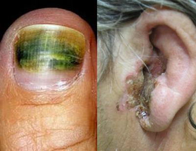фото синегнойная инфекция