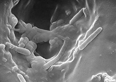 пленка на бактериях