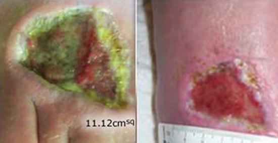 синегнойная инфекция до и после