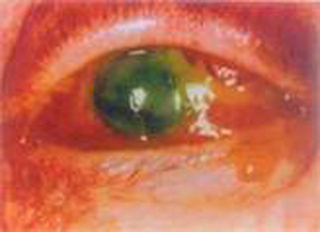 синегонойная палочка на глазах