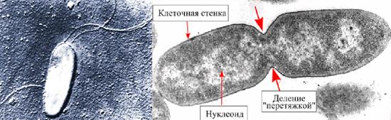 возбудитель синегнойной инфекции