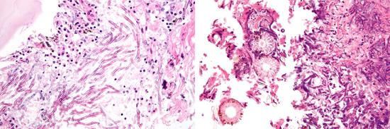 Гистологическое выявление спор Aspergillus