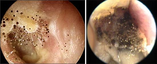Aspergillus могут поражать наружные слуховые проходы