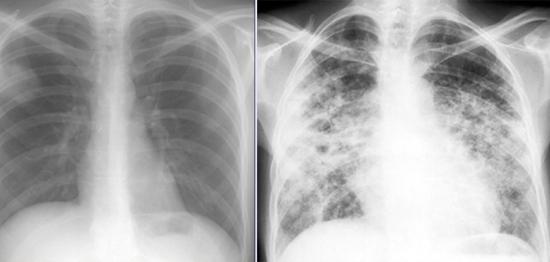 Грибковое поражение легких видны на рентгене