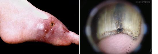 Aspergillus часто поражает кожу и ее придатки