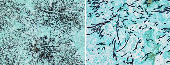 Так виден мицелий аспериллус под микроскопом при окраске по Гомори