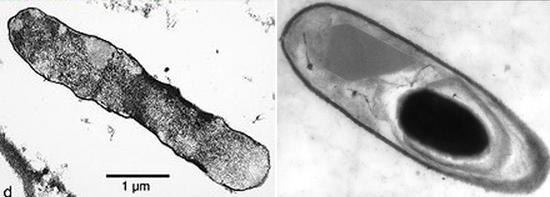 Клостридий можно разглядеть под микроскопом.