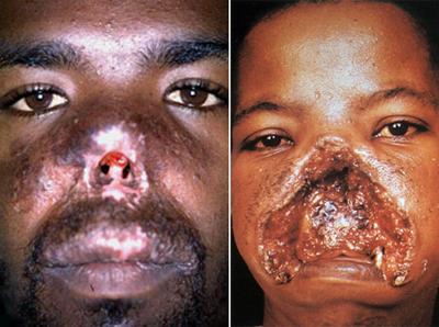поражение лейшманиями кожи лица