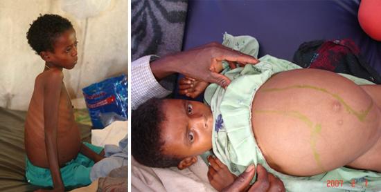 Симптомы инфицирования детей лейшманиями