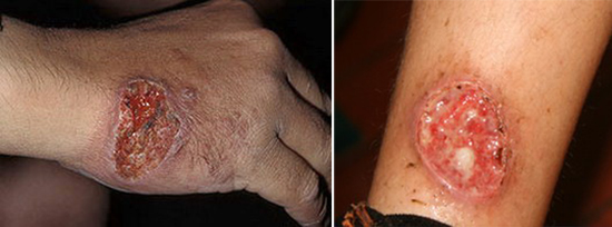 Так выглядат кожные покровы при заражении лейшманиозом