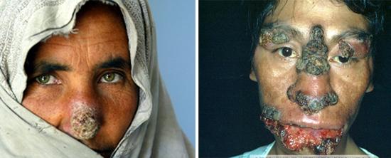 Признаки лейшманиоза на лице