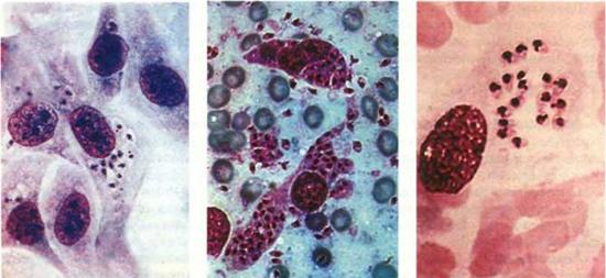 Возбудители лейшманиоза под микроскопом