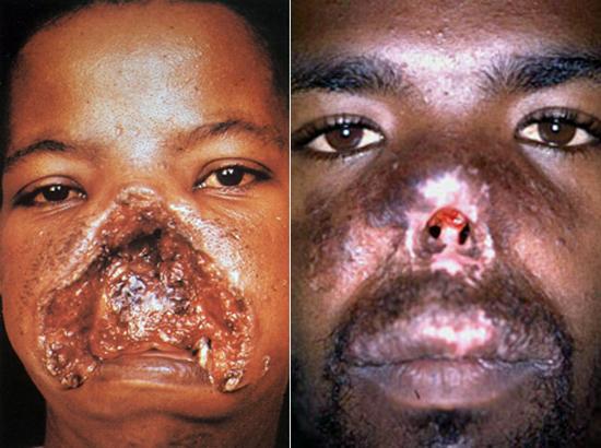Очаги заболевания расположены в теплом тропическом климате.